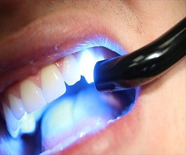 Find Dental Filling Clinic in south delhi